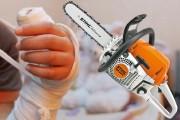 EXCLUSIV - Caz ȘOCANT  la Cluj: Un copil din centru de plasament și-a tăiat mâna cu drujba! Șeful orfelinatului și spitalul au mușamalizat totul