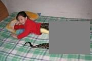 VIRAL: Fetița ȘARPE a înnebunit lumea medicală și internauții