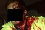 EXCLUSIV - Doi polițiști au fost atacați cu coasele la Aghireșu! Agenții răniți în misiune au tras mai multe focuri de armă